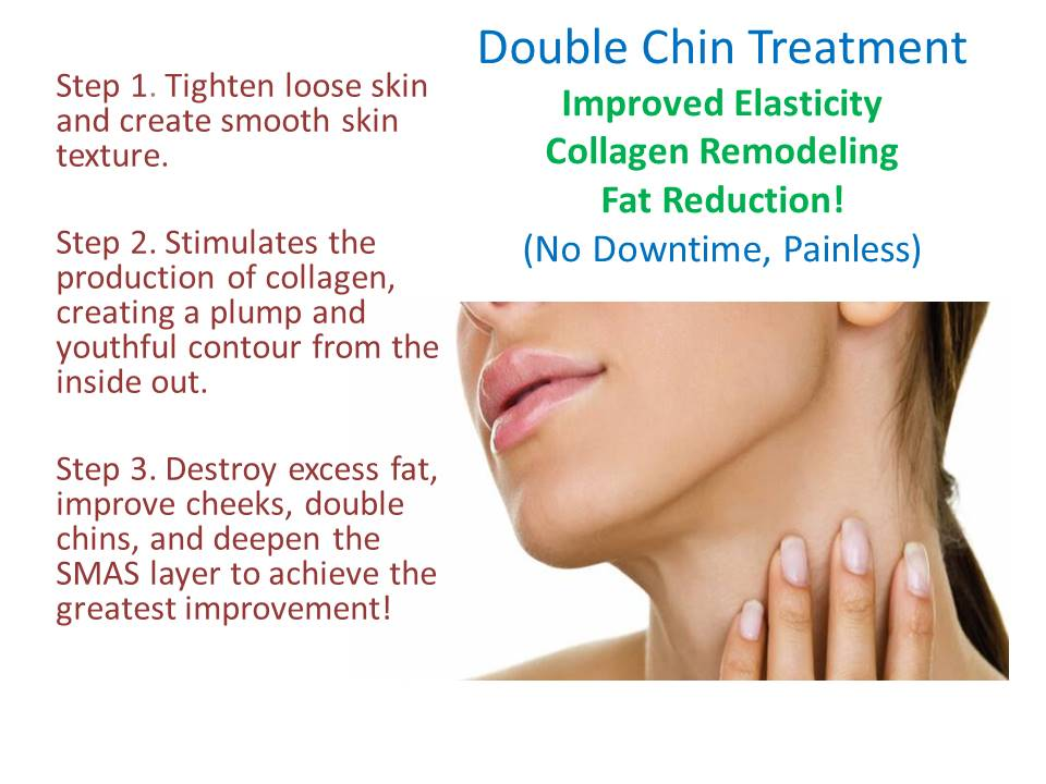 Treat Double Chin & V-Line Chin Lift web